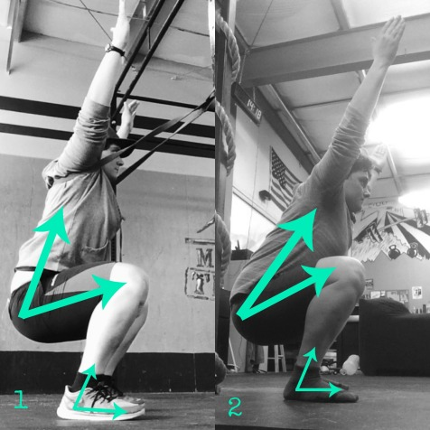 Initial mobility progress: banded assistance and heel lift to no assistance at all